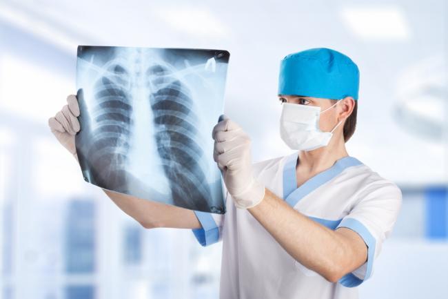 Рентген і флюорографія: у чому різниця. Здоров'я - Новини Рівного ...